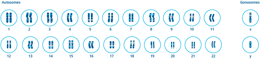 Schematic figure of a chromosome maldistribution in the first meiotic division